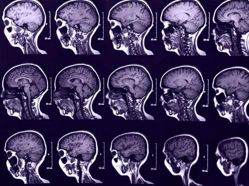 Scanning af menneskehjerner.